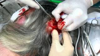 Удаление жировика (атеромы) на голове(Подробнее о жировиках - на http://www.varikoz.biz/surgery/lipoma/, 2015-05-25T18:20:00.000Z)