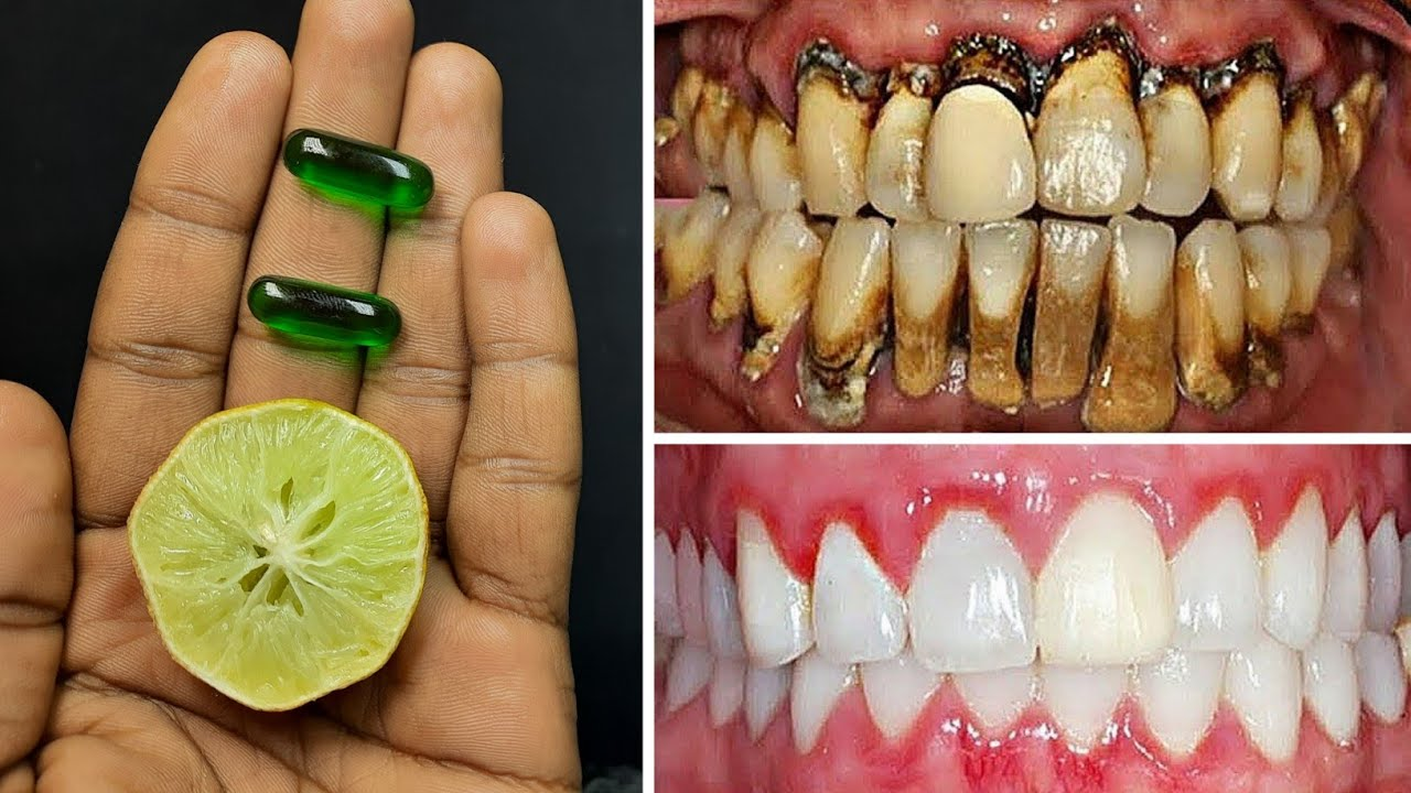 2 मिनट में गंदे पीले दांतों को दूध जैसा सफेद और चमकदार बना देगा ये तरीका | teeth whitening remedy