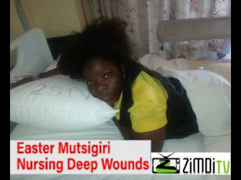 ZRP police Brutality Women Victims speak about the horror