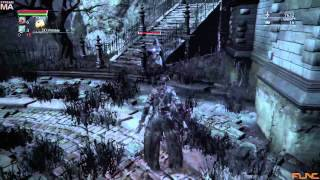 [Bloodborne] Cry Streams: Sickly Bloodborne Second Time Grime Time [4/7/15] [P5]