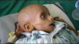 أخبار عربية - يونيسيف: مليونا طفل في اليمن يعانون من نقص حاد في التغذية