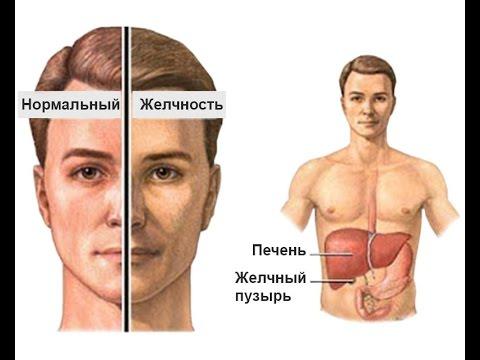 Повышенный билирубин – причины и симптомы билирубина