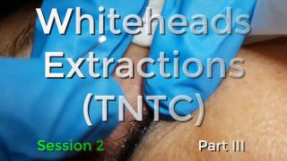 Whiteheads Extraction (TNTC) - Session 2: Part 3 of 3