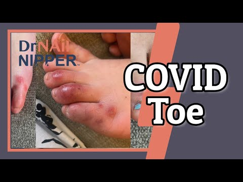 Let's Talk About COVID Toe