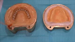 Processing of Complete dentures