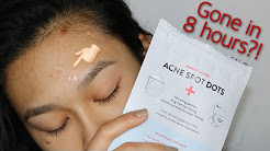 hqdefault - Overnight Acne Cure Review