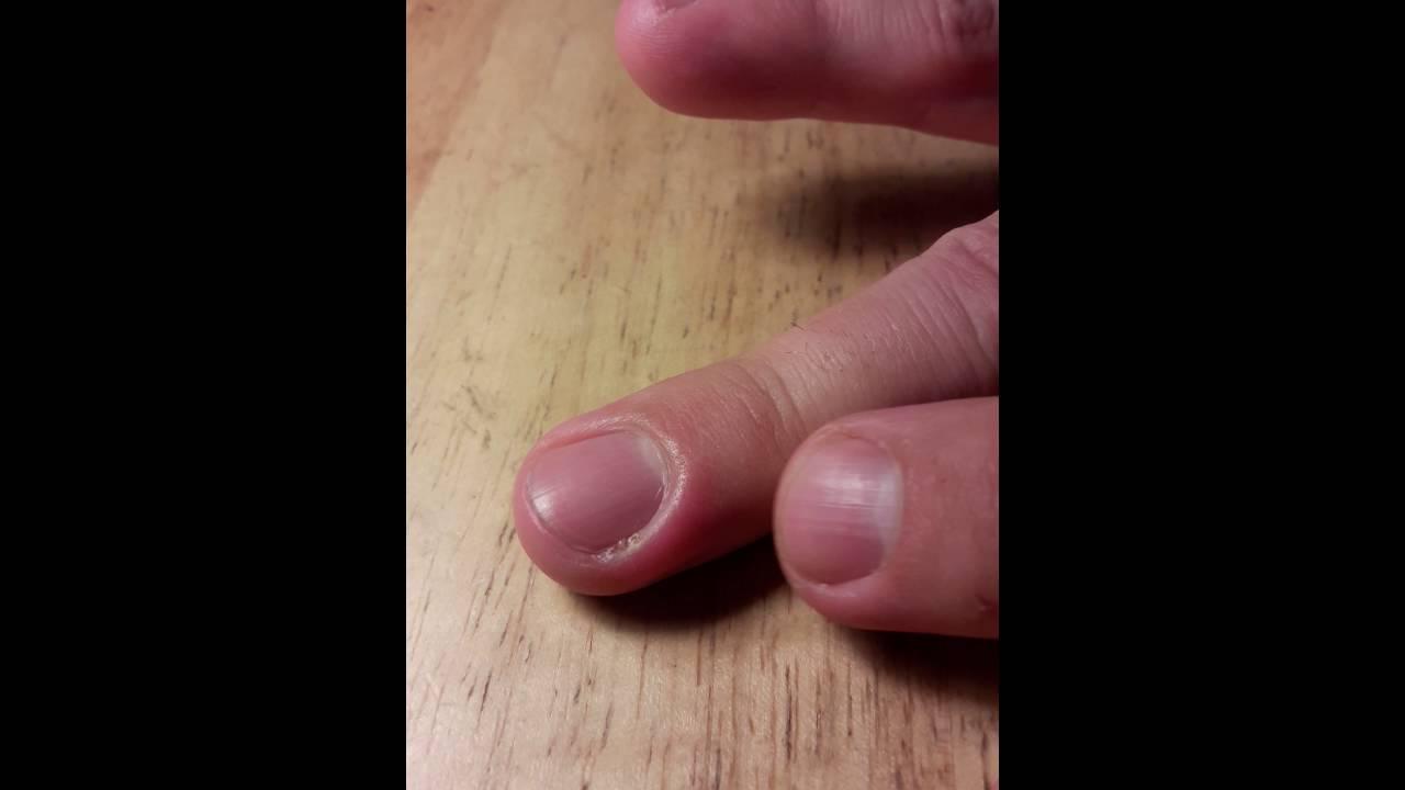 Gross infected fingernail pop - YouTube