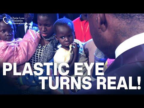 Plastic Eye Turned REAL in Uganda
