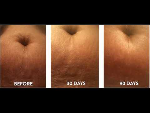 do stretch marks appear before or after weight loss