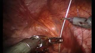 Da Vinci Robot Assisted Excision of Severe Deep Infiltrating Rectovaginal Endometriosis