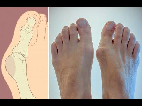 ★ Как избавиться от косточки на ноге. Как удалить шишку на большом пальце ноги. Вальгусная