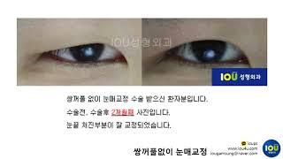 아이오유성형외과 : 쌍꺼풀없이 눈매교정(안검하수) 3 …