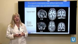 How Does A Child's Brain Develop? - Susan Y. Bookheimer Phd | Uclamdchat Webinars
