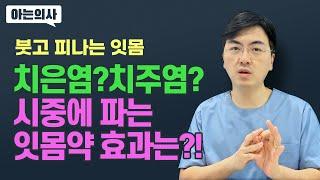 치주질환 - 치은염과 치주염 어떻게 다르지? 치료 방법…