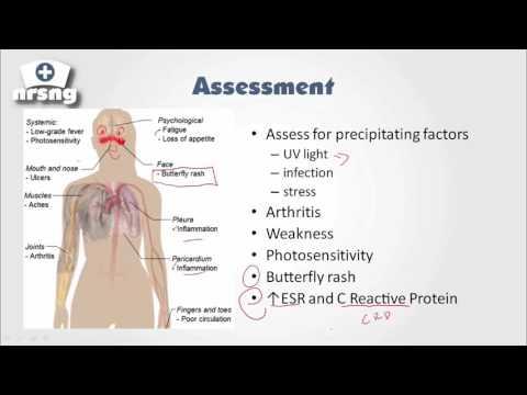 Lupus (SLE) NCLEX® Review   NRSNGacademy.com
