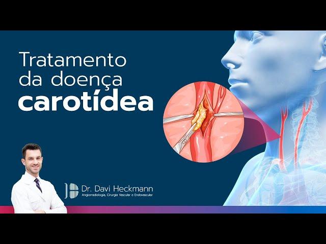 Tratamento da doença carotídea | Dr. Davi Heckmann