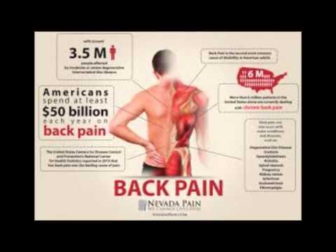 Đau Lưng - P1 - Vì sao bị đau lưng? - BS Do Nguyen