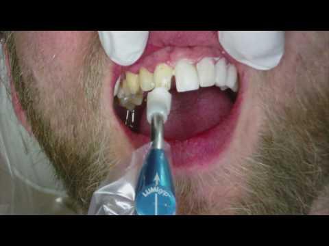 Veneers Dental Procedure at Cosmetic Dental Associates in San Antonio, TX