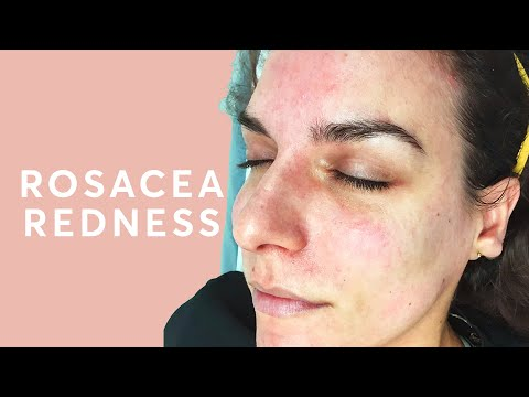 Rosacea Hormonal Imbalance Pulse Light Clinic London