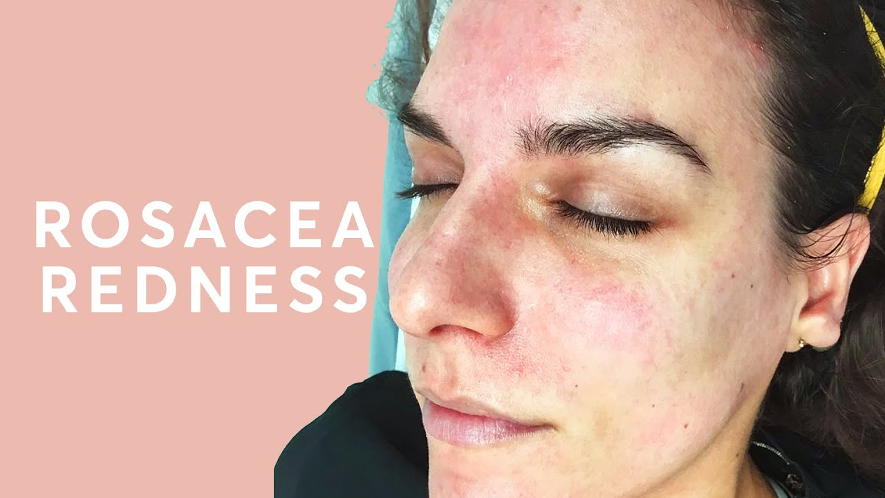 How To Treat A Red Face Rosacea Treatment Youtube