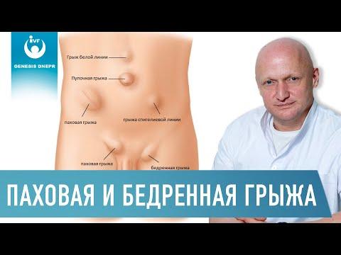 ПАХОВАЯ ГРЫЖА и БЕДРЕННАЯ ГРЫЖА. Причины, симптомы, диагностика, лечение, реабилитация Хирург Щевцов