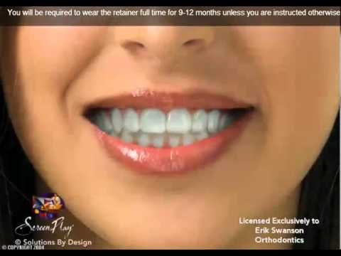 ES Ortho and Essix Retainers: Essix are clear retainers similar to Invisalign aligners