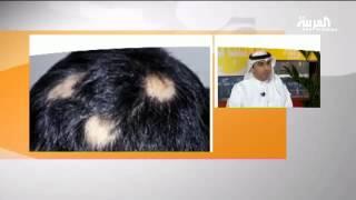 الثعلبة هو مرض غير خطير وغير معدي