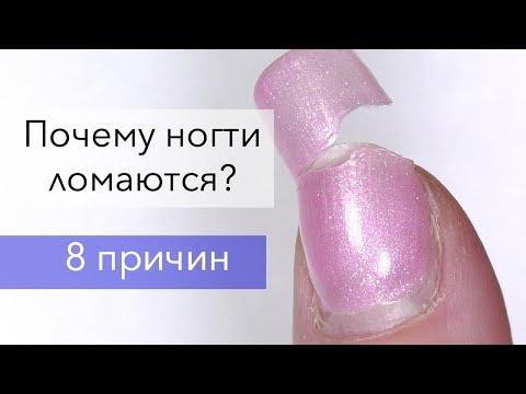 Почему ломаются ногти по бокам