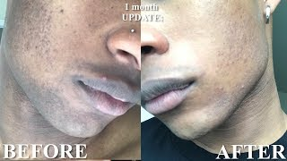 How to Fade a Beard shadow in 1 month | Get rid of hyperpigmentation