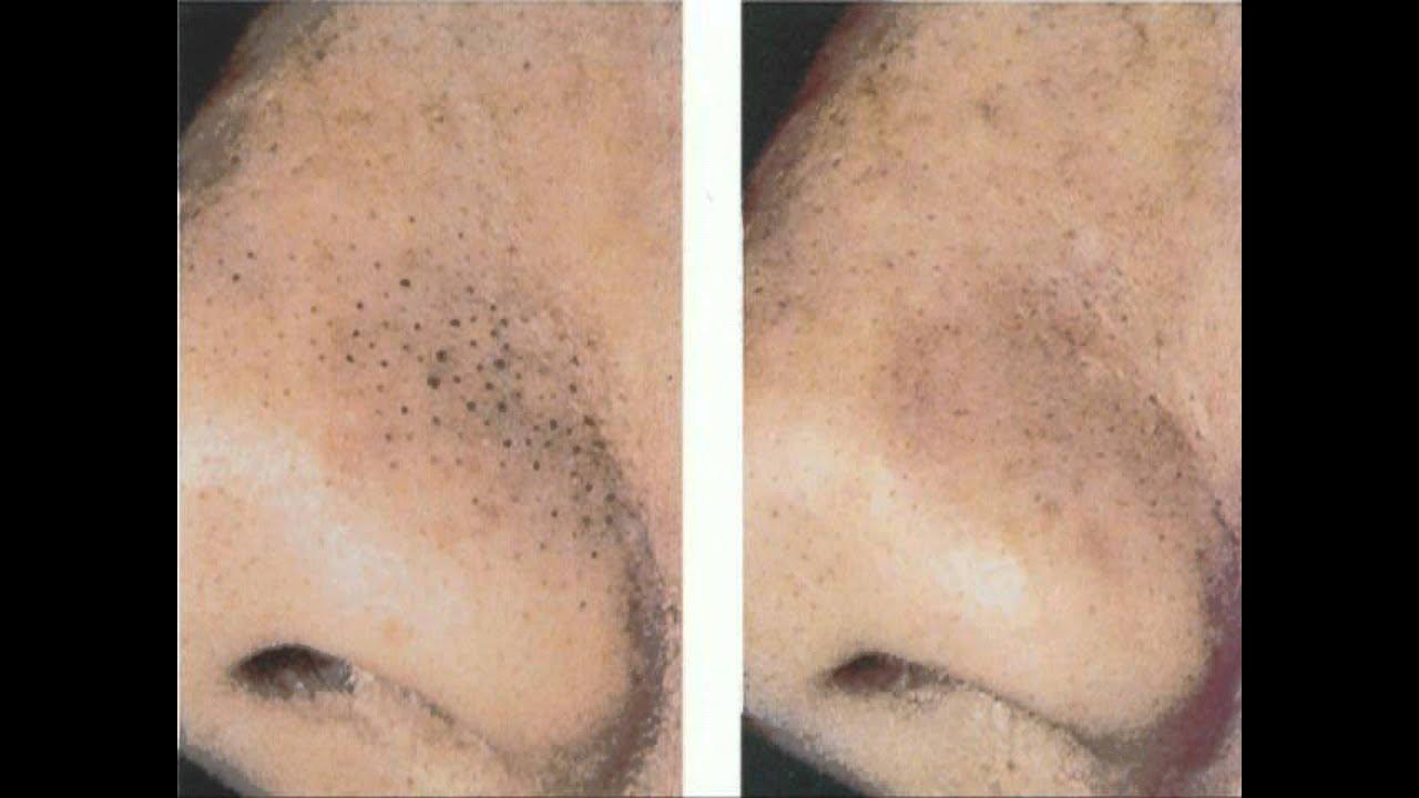 Как убрать черные точки на носу - Рецепты в домашних 82