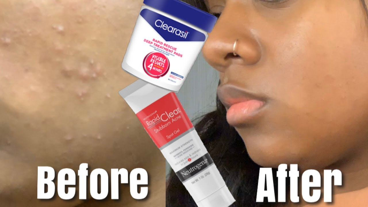 HOW TO GET RID OF ACNE IN ONE WEEK!