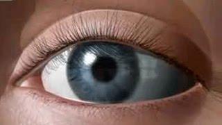 getlinkyoutube.com-Полное восстановление зрения для всех! 100% результат! Запрещено для показа