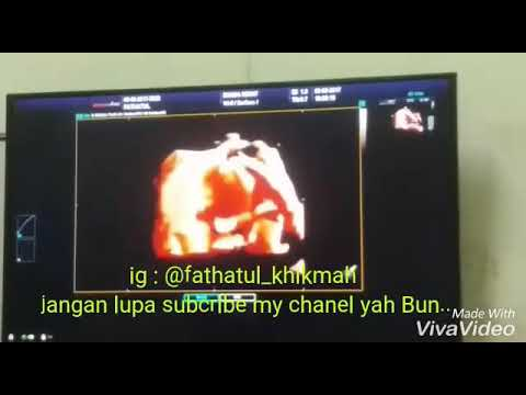 USG 4 Dimensi 29 Weeks Kehamilan #hidungnya Mancung Mirip Ayahnya Hehe #mybaby