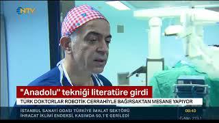 Gambar cover Prof. Dr. Bülent ÖNAL - Robotik cerrahi ile bağırsaktan mesane yapma ameliyatı - NTV