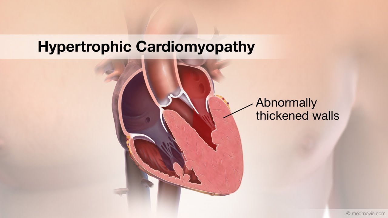 hypertrophic cardiomyopathy Learn about the treatment and prognosis of hypertrophic cardiomyopathy.
