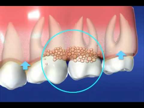 Gum Disease - Florida Institute for Periodontics & Dental Implants - West Palm Beach, FL