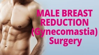 Male Breast Reduction (Gynecomastia) Surgery - GlobalTV Thumbnail