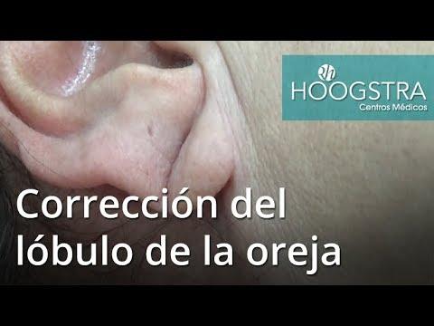 Corrección del lóbulo d ela oreja (17093)