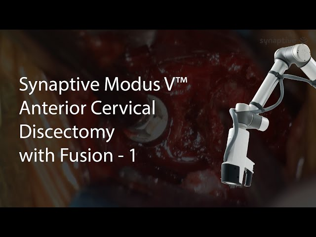 Synaptive Modus V™ - Anterior Cervical Discectomy with Fusion - 1