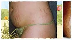 Dermology Stretch Mark Cream - Free Offer
