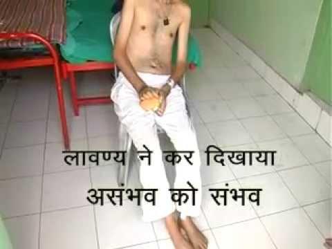 Successful Treatment of MND Patient by Lavanya Ayurveda