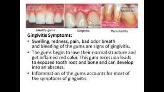 How To Get Rid of Gingivitis - Hidden Truth Dentists Hide From You!