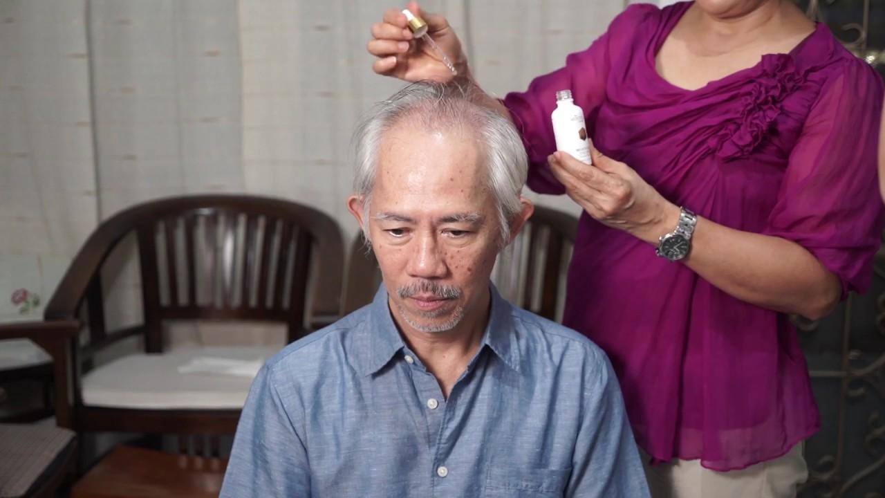 Review Montclair Hair Serum Penumbuh Rambut Youtube Alkatel
