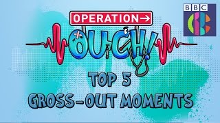 Operation Ouch | Top 5 Gross-out Moments | CBBC