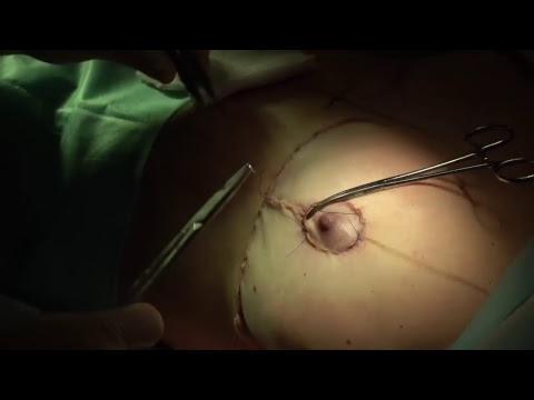 Подтяжка груди. Прямой эфир с операции. Ответы на вопросы, комментарии.