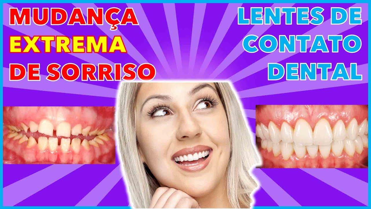 Faceta e lentes de contato dental em Curitiba - Dentista Curitiba - Facetas  de porcelana curitiba - YouTube 4851226edf