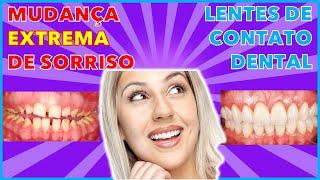 Faceta  e lentes de contato dental em Curitiba - Dentista Curitiba - Facetas de porcelana curitiba thumbnail