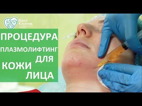 Плазмолифтинг лица. 💉 Возвращаем коже лица здоровый вид с помощью процедуры плазмолифтинг.