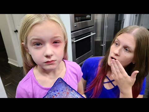 Trinity Has an Allergic Reaction!!! Her Eye is Swollen!