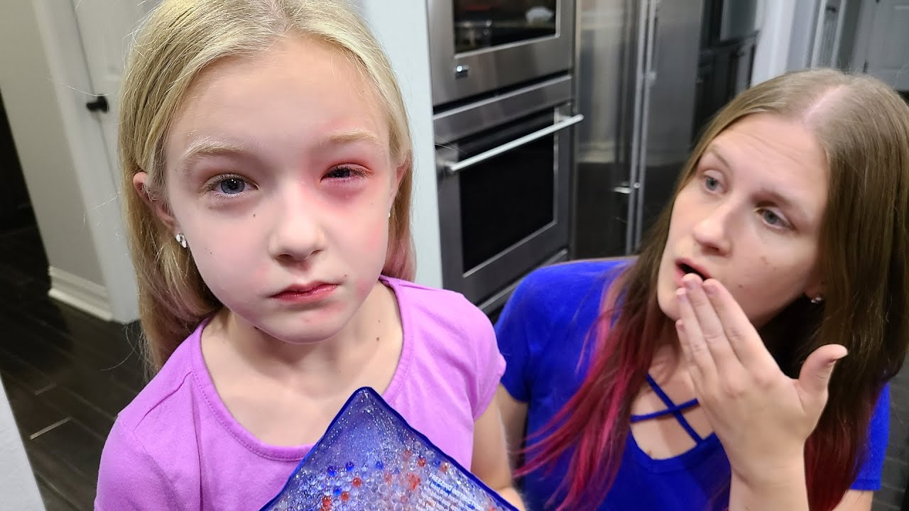 Download Trinity Has an Allergic Reaction!!! Her Eye is Swollen!